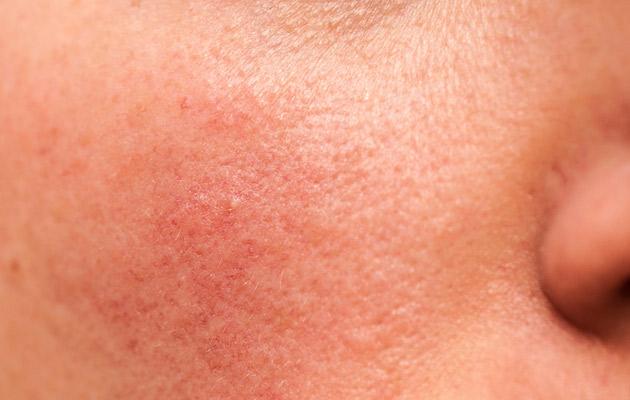 Couperosa-ihoa tulee hoitaa hellästi