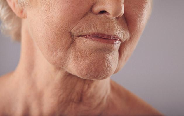 couperosa-iho on monen herkkäihoisen riesa