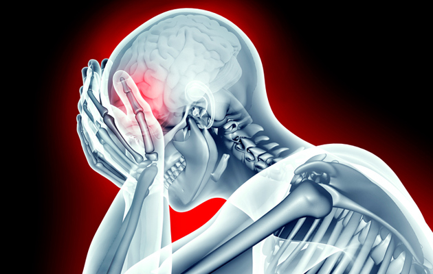 Kuva - Päänsärky vaivaa ajoittain lähes jokaista – tiedätkö, milloin on aihetta huoleen?