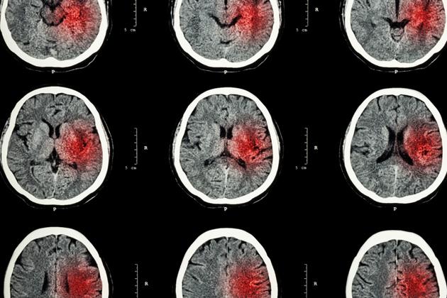 päänsärky on tavallinen oire
