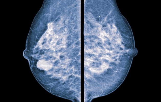 Rintasyöpätutkimus