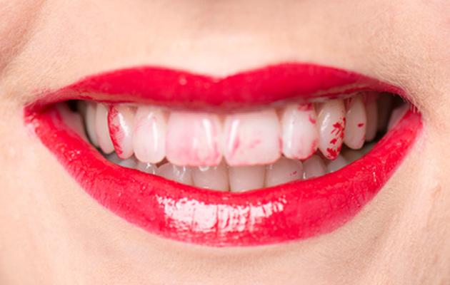 Hampaissa huulipunaa, taas! Nerokas niksi auttaa.
