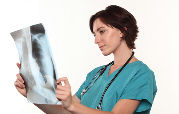 Lääkäri tutkimassa keuhkokuvaa